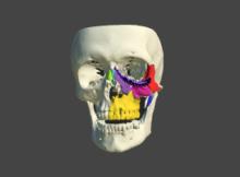 osteophoenix